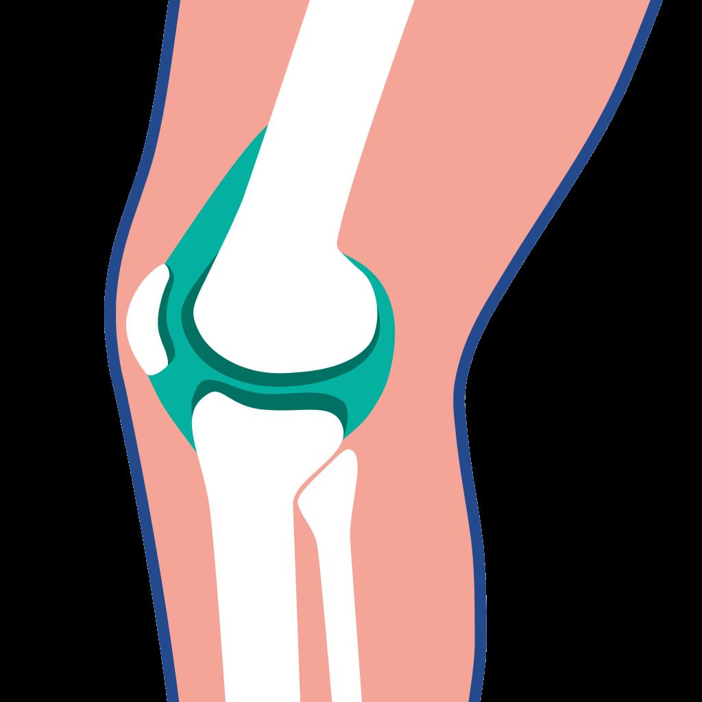 Kniearthrose - Wenn das Knie schmerzt